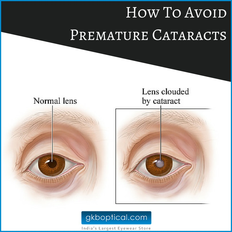 How To Avoid Premature Cataracts
